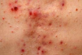 Skin problems - acne