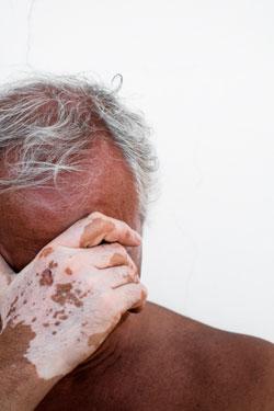 Pigmentation-Vitiligo