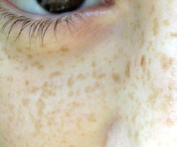 Do you ever wonder how moles and freckles differ