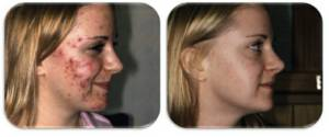 regenlite acne before after 300x125